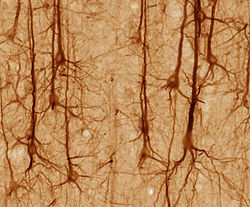 Neurons in the brain (Wikipedia)